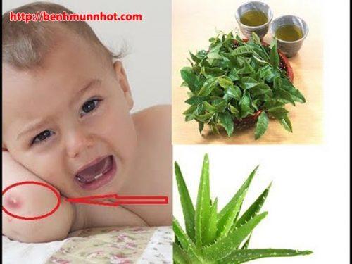 Nha đam, lá chè xanh rất tốt cho trẻ bị mụn nhọt - Trẻ bị mụn nhọt đắp lá gì?