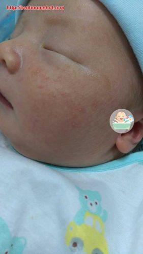 Trẻ sơ sinh nổi mụn đầu trắng mẹ xử lý chỉ trong 2 ngày với Bột tắm trẻ em Nhân Hưng