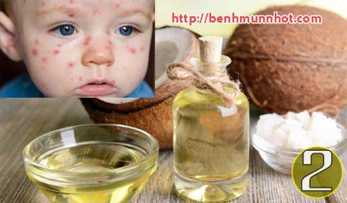 trị mụn đơn giản bằng dầu dừa