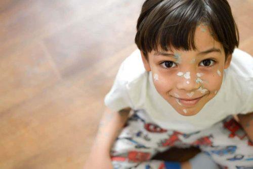 Bệnh zona ở trẻ em