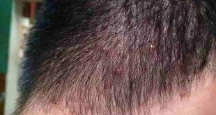 Nổi mụn nhọt trên đầu có nguy cơ lan ra nhiều vị trí khác