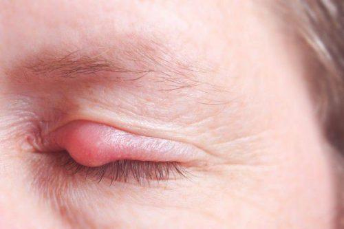 Chườm ấm giúp vùng mắt đỡ sưng đỏ và nhanh khỏi hơn