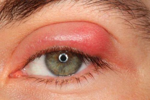 Nổi mụn lẹo ở mắt hay còn gọi là mụt lẹo